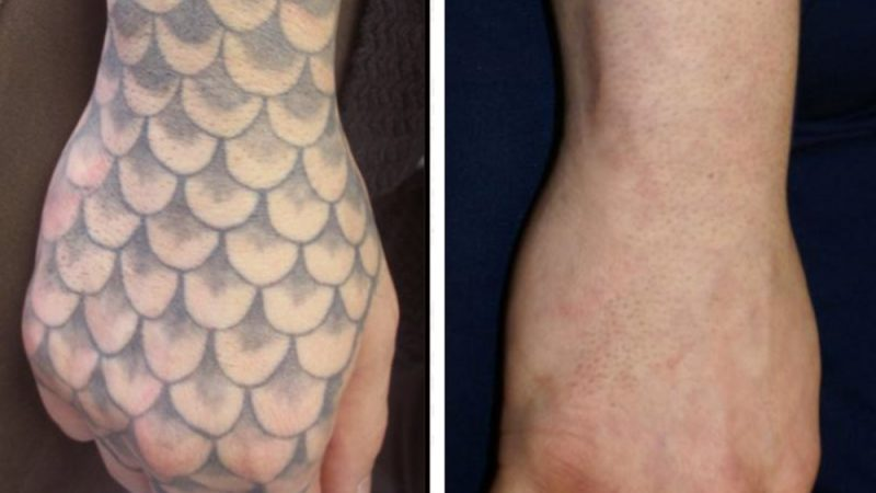 What Are Tattoo Numbing Creams And Why You Should Use Them?